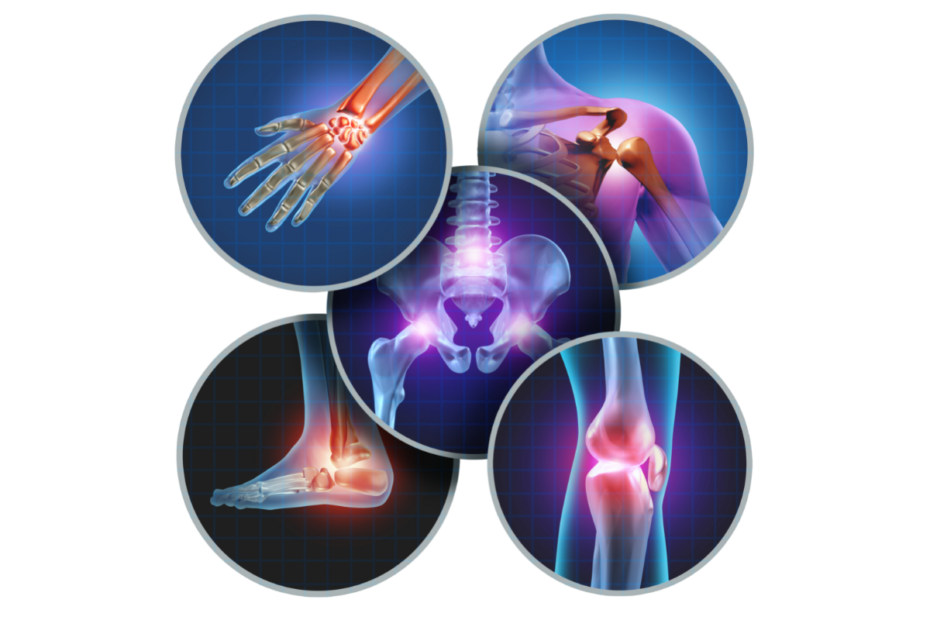 Naturopathie et arthrose